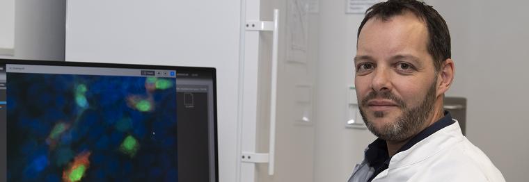 Fondation Cancer Luxemburg fördert Prostatakrebsforschung